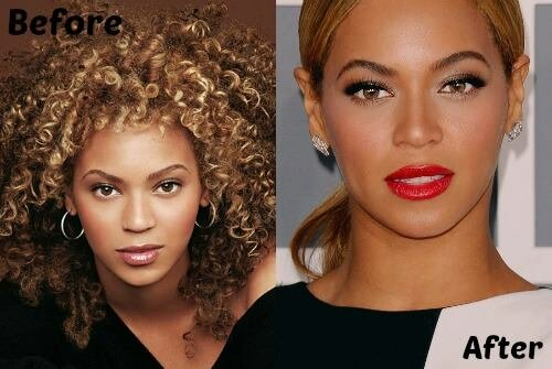 Beyonce Knowles plastic surgery before and after photo