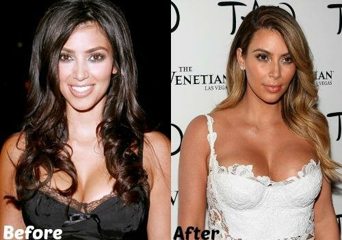 Kim Kardashian plastic surgery before and after photo