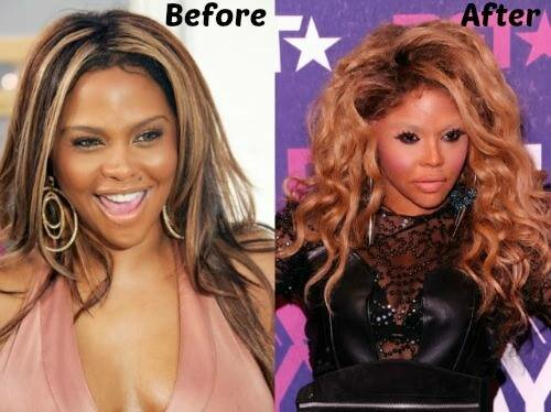 Lil Kim plastic surgery before and after photo