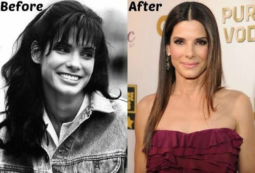 Sandra Bullock plastic surgery before and after photo