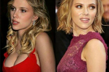 Celebrity Plastic Surgery Before And After Photos