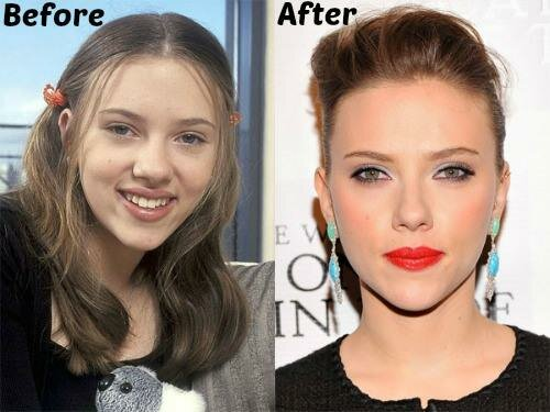 Scarlett Johansson plastic surgery before and after photo