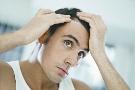 How To Treat Hair Loss – Effective Male Pattern Balding Cure